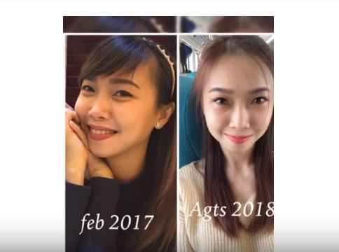 before after suntik putih